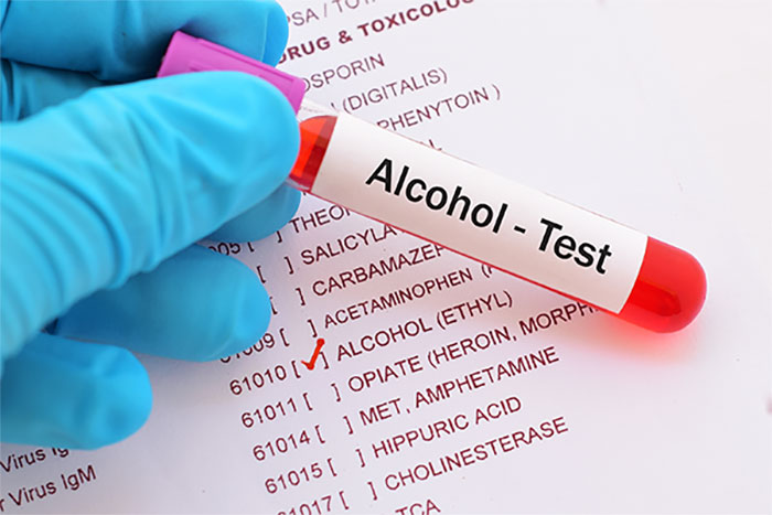 Alcohol Testing Services in Bakersfield